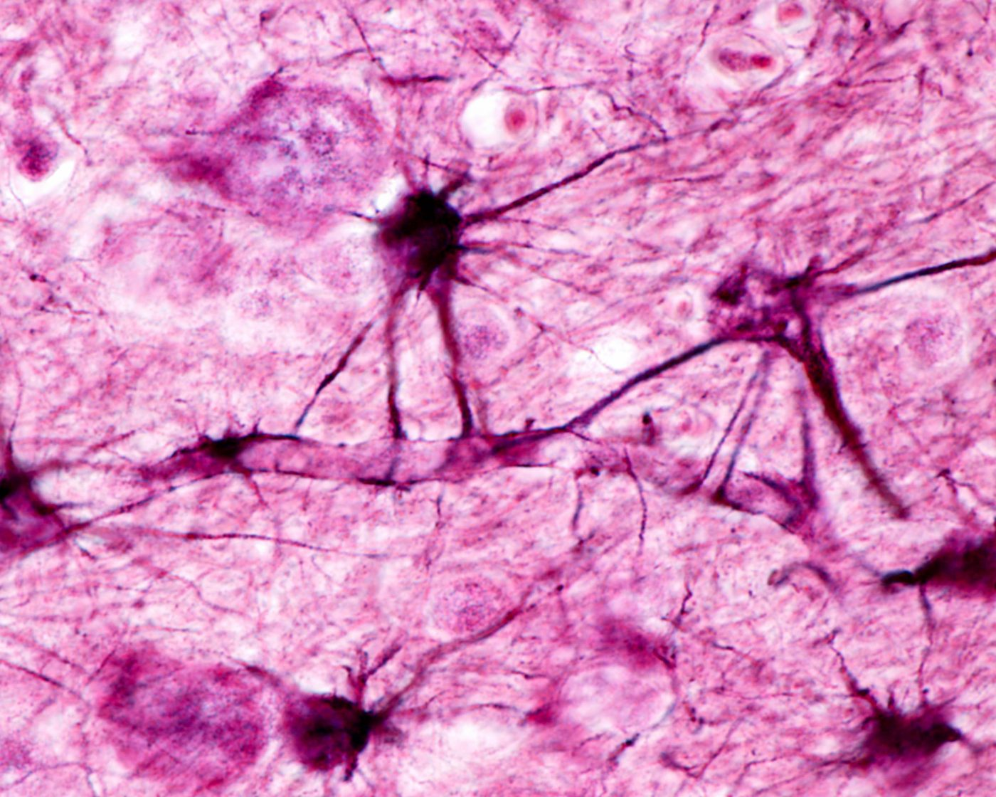 Cell Death in Parkinson's Disease Associated With New Genetic Mutation