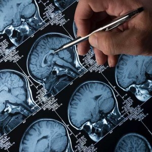 3-Minute Test Detects Parkinson's and Lewy Body Dementia