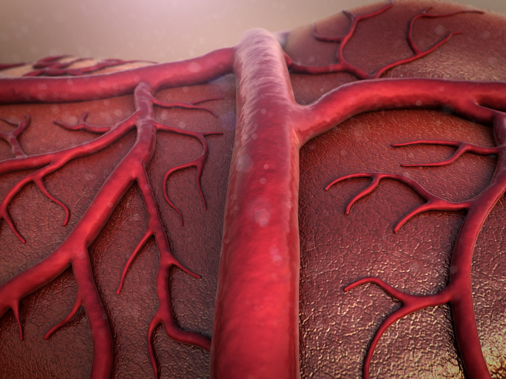 angiogenesis biomarkers and Parkinson's