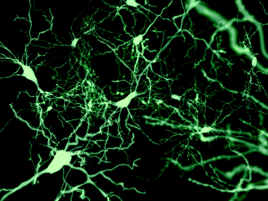 Deterioration of Nerve Cell Structure Not the Main Cause of Early Parkinson's Symptoms, Mouse Study Suggests