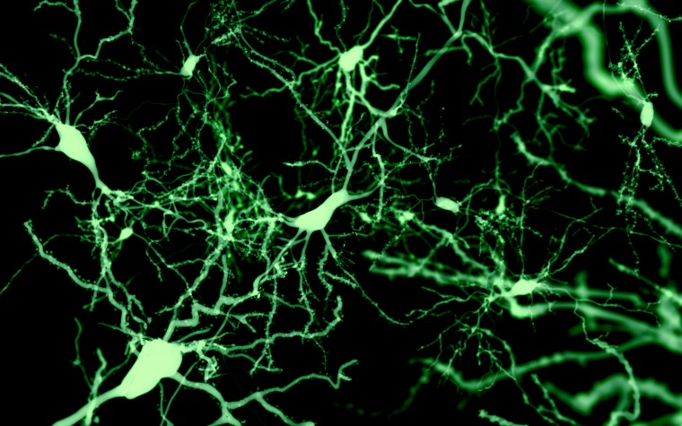 neuron structure changes