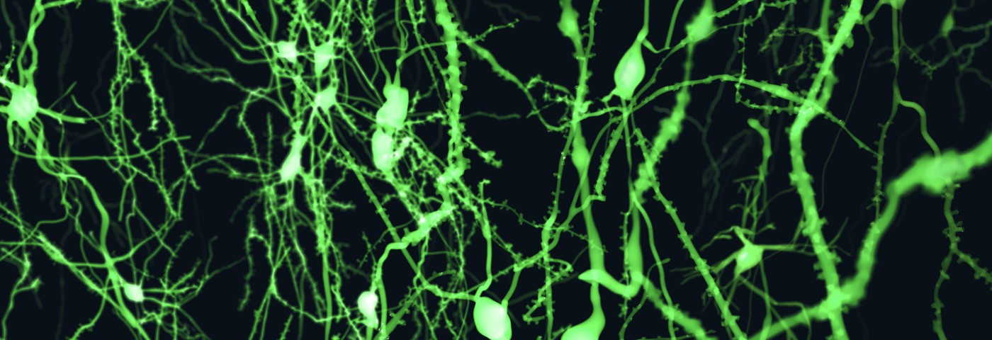 Dopamine Therapy for Parkinson's May Be Possible Using Neurons Transplants with On and Off Switches