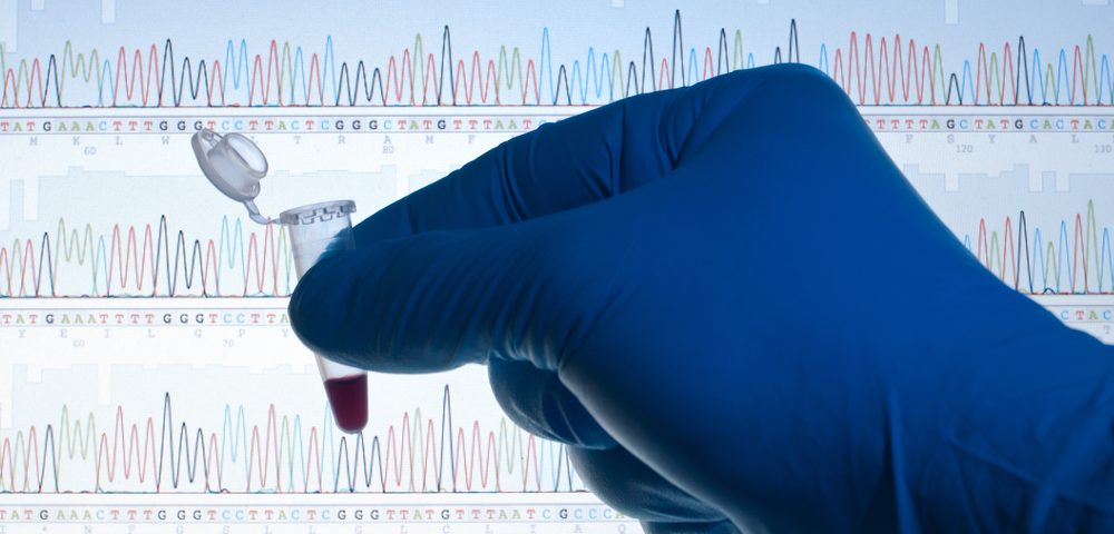 Questions Raised on Gene Mutation Found in Early Onset Parkinson's Patient