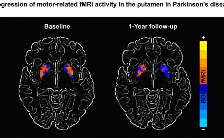 Parkinson's patient scan in UF study