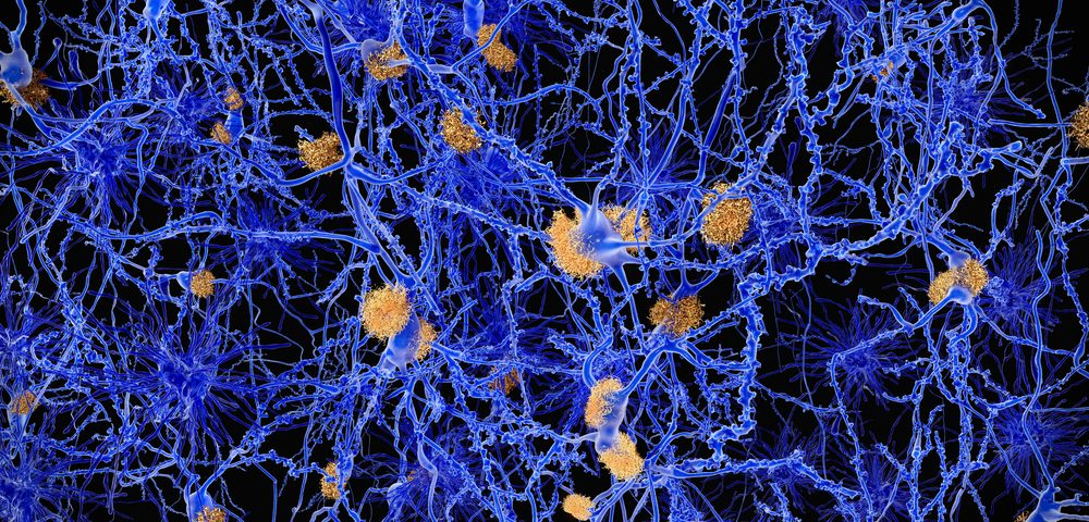 Parkinson's Researchers Find How Single Gene Can Protect Against Neurodegeneration