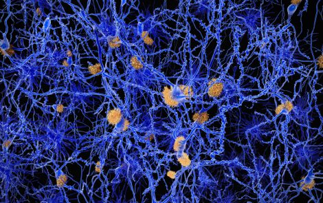 3D-Structure of Protein Revealed, Studied As Link to Early Onset of Parkinson's