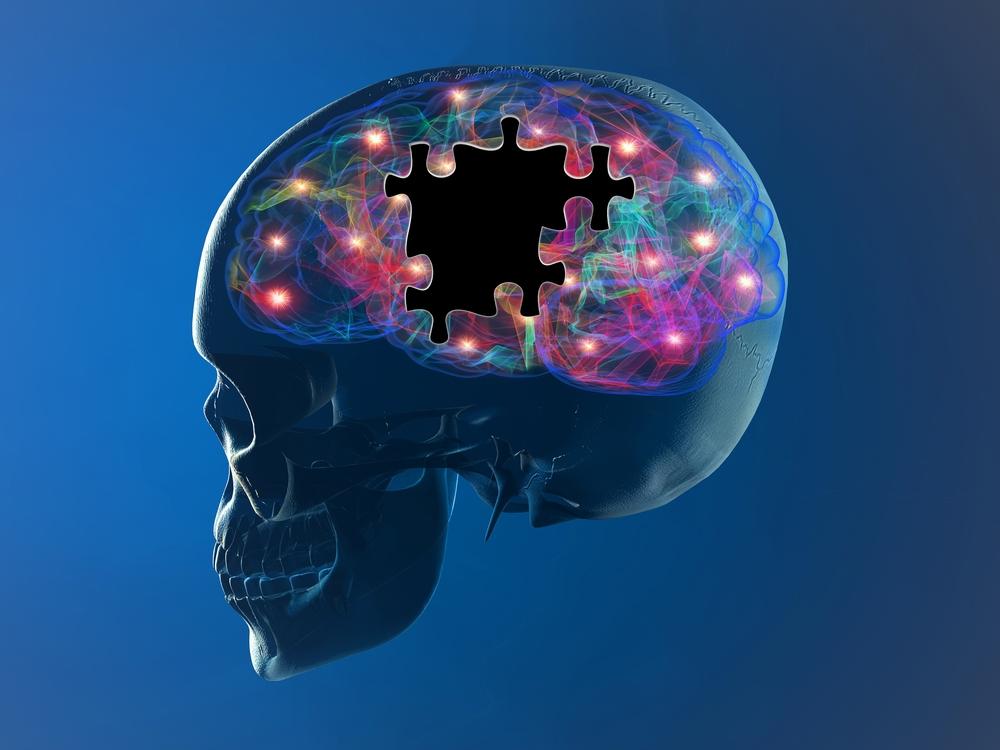 Predicting dopamine level in Parkinson's disease