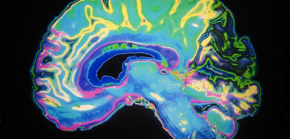 New Method Captures Images of All Brain Areas Following Gene Therapy
