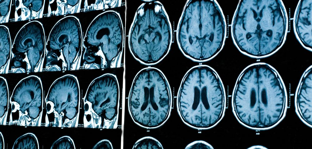 2 Markers of Parkinson's Progression May Help Trials in Newly Diagnosed Patients, Study Says