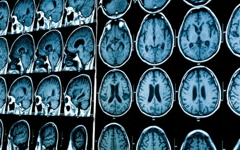 Better Biomarkers Needed to Diagnose, Predict Risk of Mild Cognitive Impairment