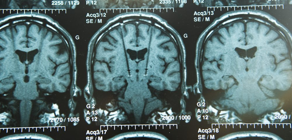 Tiny Brain Bleeds Associated with Parkinson's Disease Dementia, Study Reports