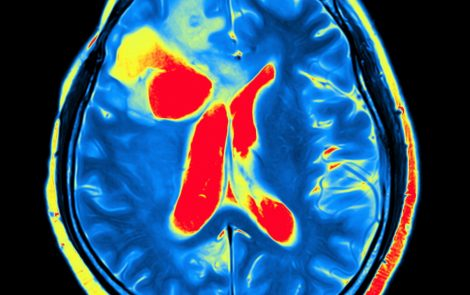 New Brain PET Scanner Shows Promise for Earlier and Less Expensive Diagnosis of Parkinson's