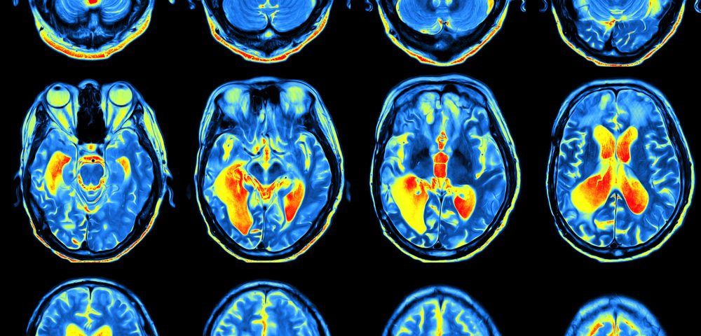 Imaging Tracer with Potential to Bolster Clinical Trials of Parkinson's and Its Treatments Favored by EMA