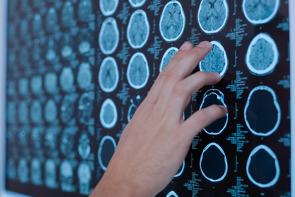 Iron Levels in Brain May Predict Parkinson's Severity and Cognitive Decline, Study Finds