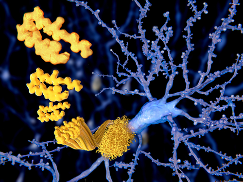 Enzyme Linking Fatty Acids to Alpha-synuclein Could Be Parkinson's Therapeutic Target, Study Suggests