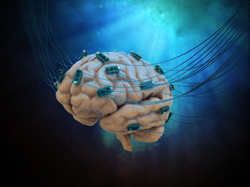 Transient Cerebral Swelling a Common Side Effect of Deep Brain Stimulation, Study Suggests