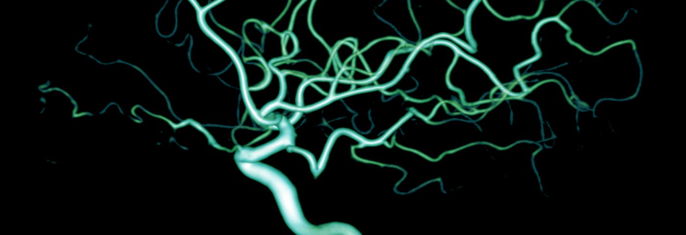 Specific Form of Alpha-Synuclein Linked to More Severe Parkinson's Symptoms in Early Study