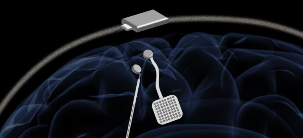 Wireless Pacemaker-like Device May Offer Real-time Treatment for Parkinson's, Study Reports