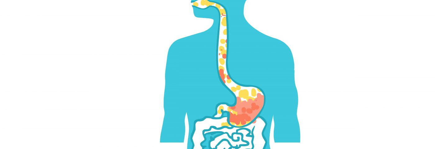 Low Levels of Substance P in Saliva May Help Predict Swallowing Problems, Study Suggests