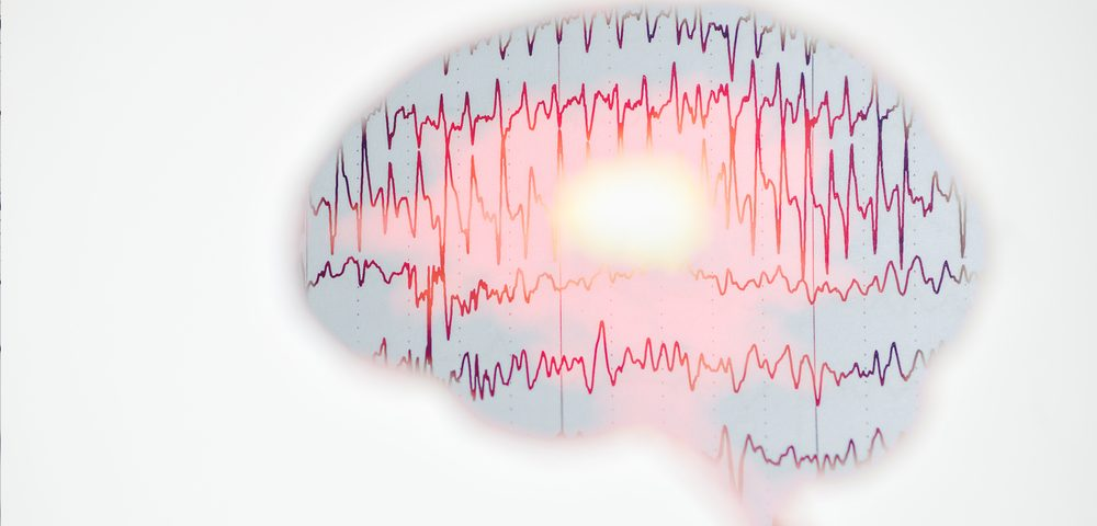 Distinct Brain Activity Patterns Captured by EEG May Help in Treating Parkinson's, Study Suggests