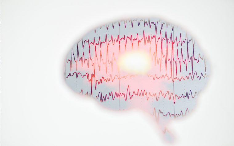 brainwaves EEG