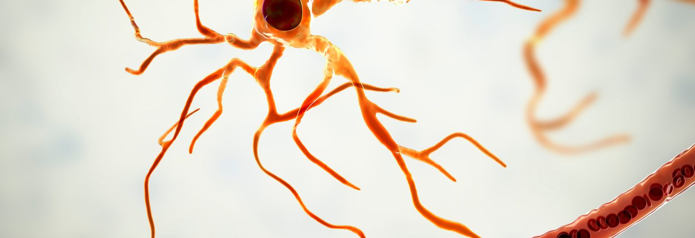 Supporting Brain Cells, Astrocytes Also May Contribute to Parkinson's Disease, Study Suggests